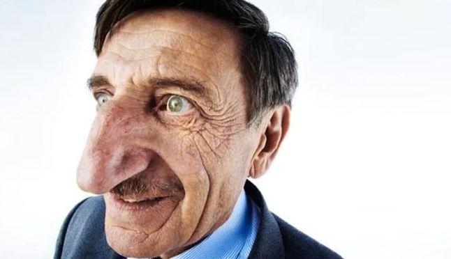 આ છે દુનિયાના સૌથી લાંબા નાકવાળો માણસ, ગિનિસ વર્લ્ડ રેકોર્ડમાં પણ છે નામ